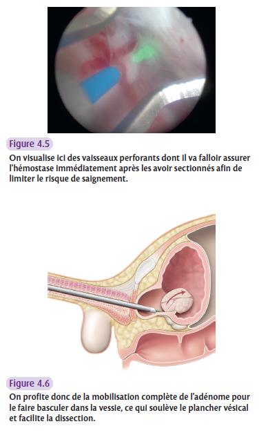 On visualise ici des vaisseaux perforants dont il va falloir assurer l'hémostase immédiatement après les avoir sectionnés afin de limiter le risque de saignement.