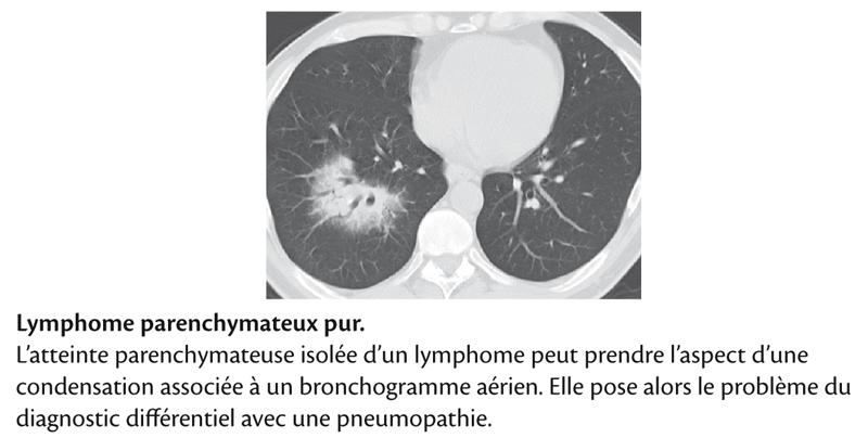Lymphome parenchymateux pur .