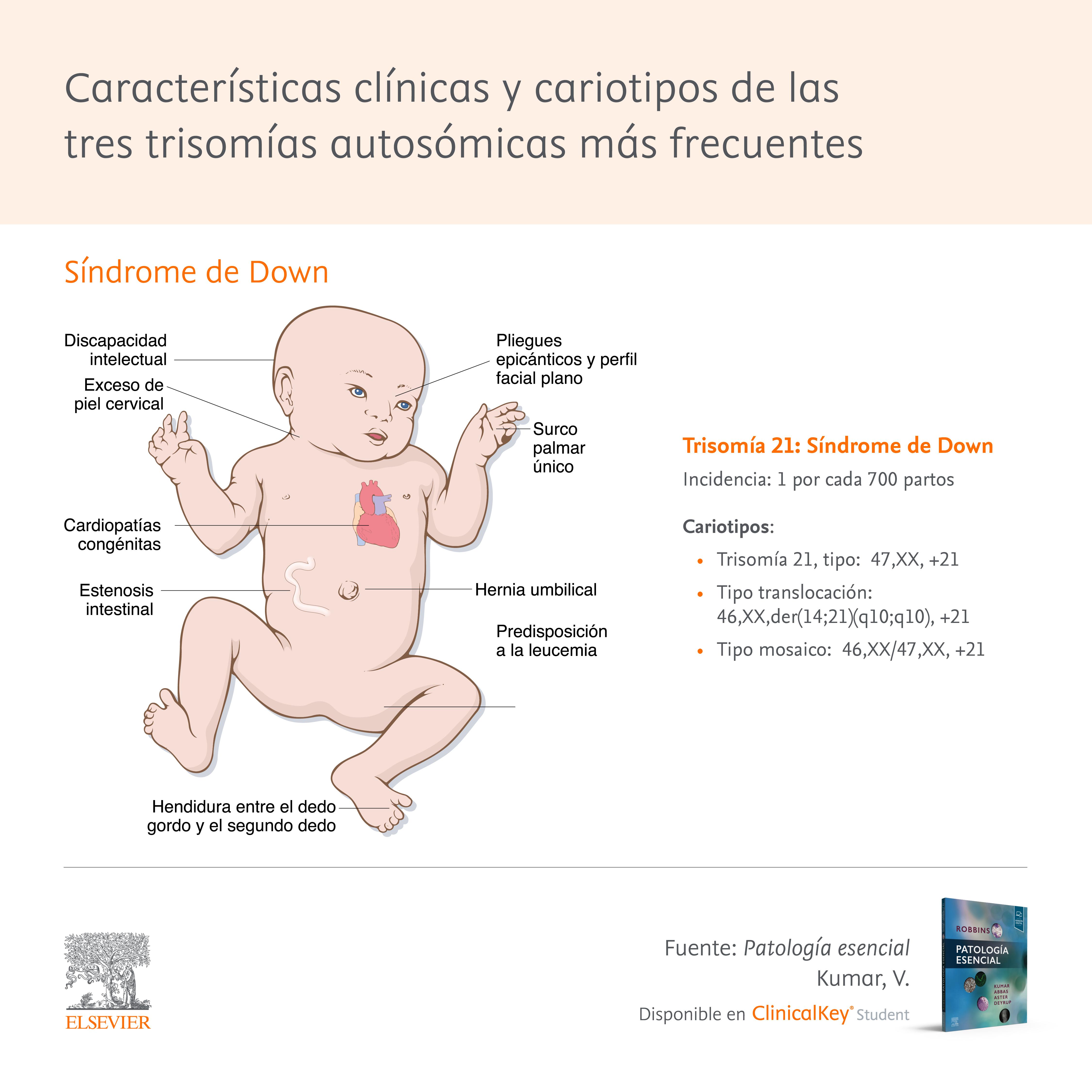 Características clínicas y cariotipos de los síndromes de Down, Edwards y Patau