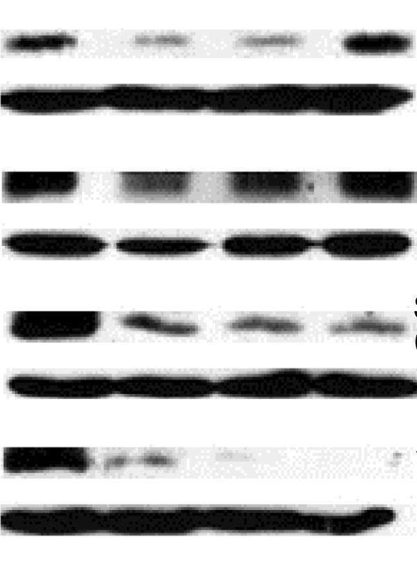 Figure 1: An example of a Western Blot suffering overloading or over-exposure problems, and inappropriate gel cutting. The accompanying paper also lacked quantification and statistical analysis around the WB.