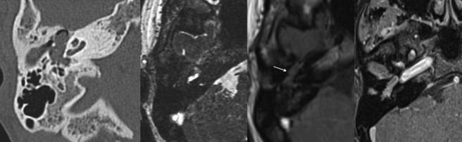 Fig. 1. Tomodensitométrie et IRM.