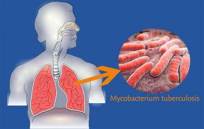 Todo lo que tienes que saber sobre la tuberculosis