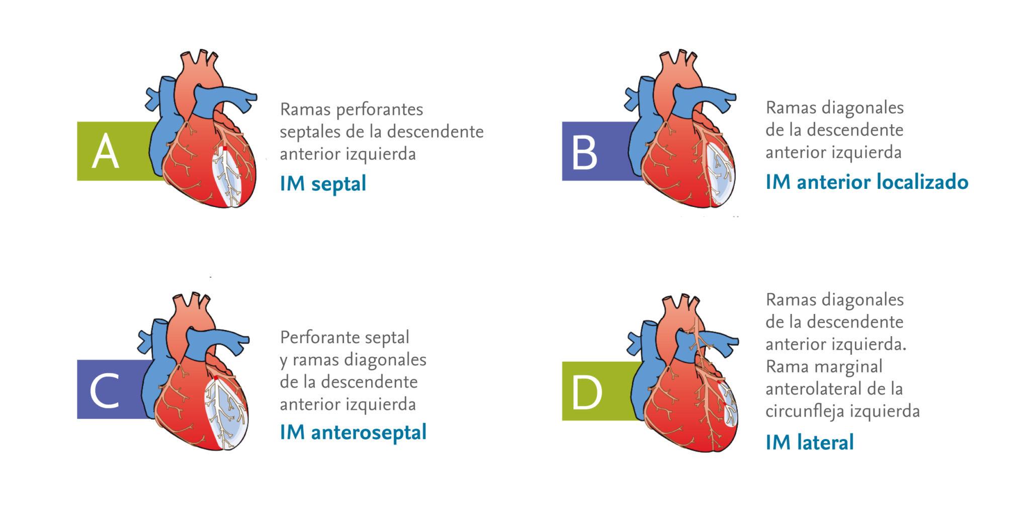 Localización de un infarto de miocardio en función de las arterias ...
