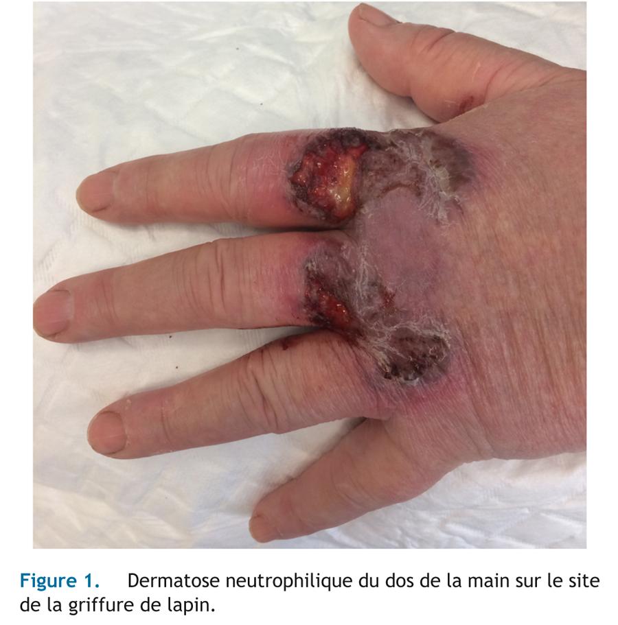 Griffure de lapin et dermatose neutrophilique du dos des mains_1