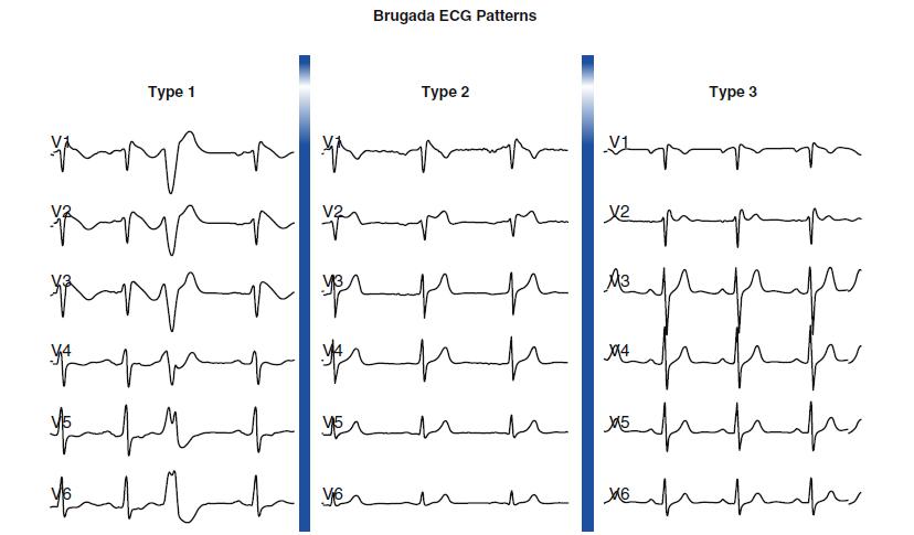 Brugada electrocardiograma