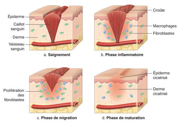 saignement Phase inflammatoire Phase de migration Phase de maturation