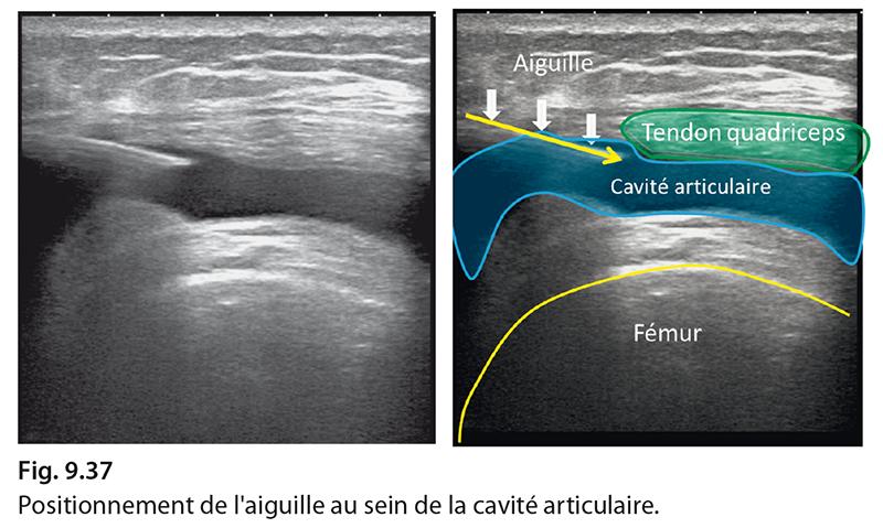 Fig. 9.37 Positionnement de l'aiguille au sein de la cavité articulaire.
