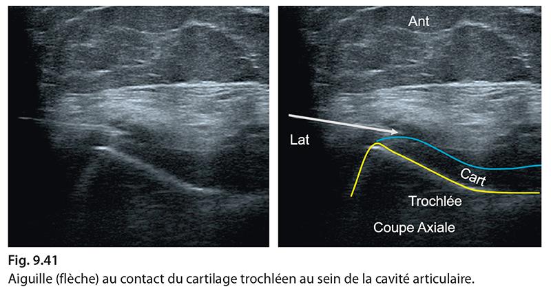 Fig. 9.41 Aiguille (flèche) au contact du cartilage trochléen au sein de la cavité articulaire.