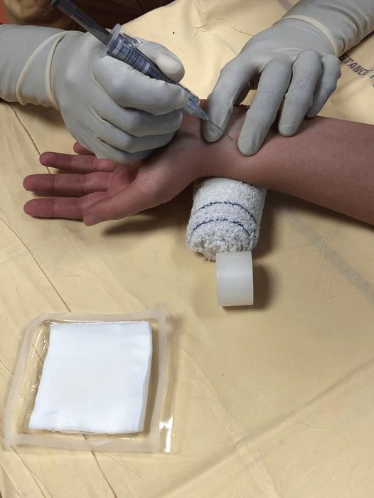 gaz du sang artériel entre les deux doigts
