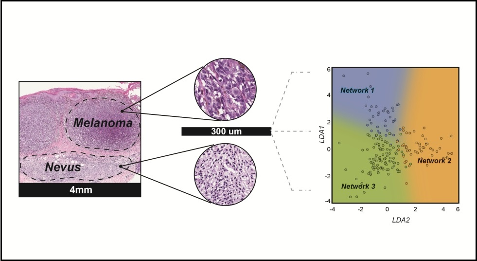 Illustration showing a close-up of pigmented skin tumors, which can be a mixture of benign nevus (mole) cells and melanoma.