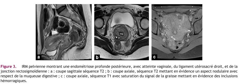 Figure 3. IRM pelvienne montrant une endométriose profonde postérieure, avec atteinte vaginale, du ligament utérosacré droit, et de lajonction rectosigmoïdienne : a : coupe sagittale séquence T2 ; b : coupe axiale, séquence T2 mettant en évidence un aspect nodulaire avecrespect de la muqueuse digestive ; c : coupe axiale, séquence T1 avec saturation du signal de la graisse mettant en évidence des inclusionshémorragiques.