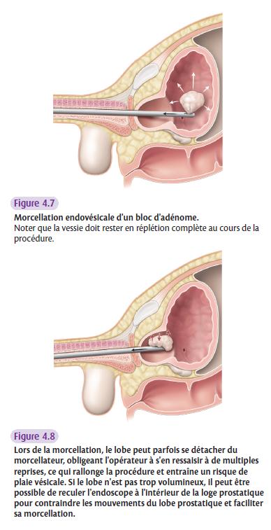 Morcellation endovésicale d'un bloc d'adénome.