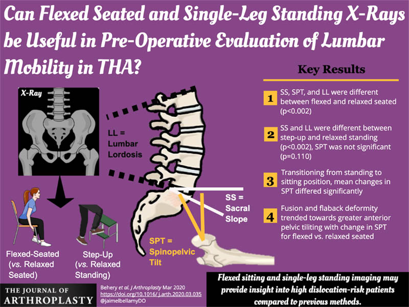 This graphical abstract in the March 2020 issue of <em>The Journal of Arthroscopy</em> shows X-ray positions for pre-operative evaluation of lumbar mobility.