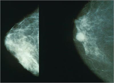 Normal versus cancerous mammography image (Source: National Cancer Institute)