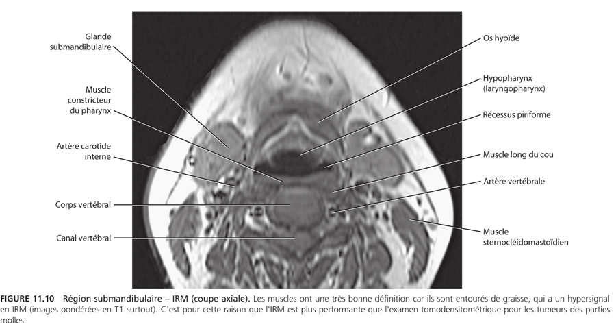 Région submandibulaire : Anatomie_10