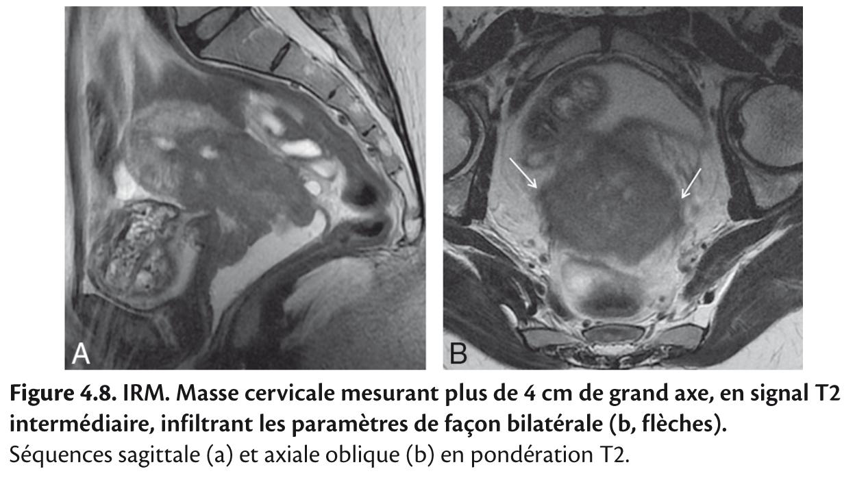 Figure 4.8. IRM. Masse cervicale mesurant plus de 4 cm de grand axe, en signal T2 intermédiaire, infiltrant les paramètres de façon bilatérale (b, flèches).