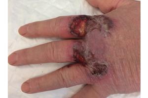 Griffure de lapin et dermatose neutrophilique du dos des mains