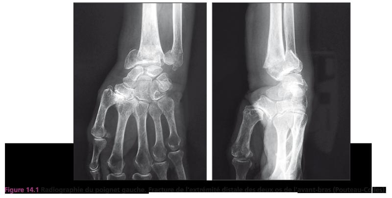 Figure 14.1 Radiographie du poignet gauche. Fracture de l'extrémité distale des deux os de l'avant-bras (Pouteau-Colles).