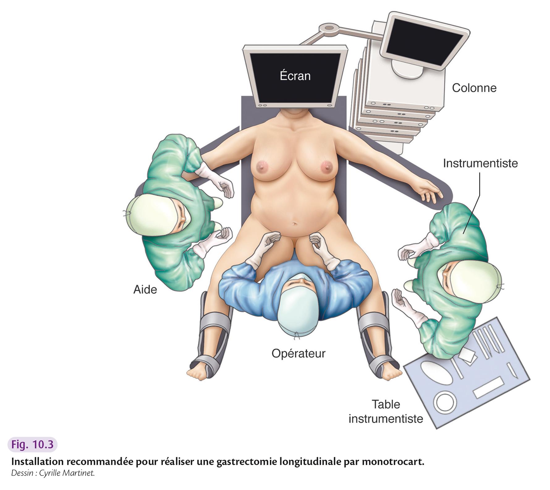 Installation recommandée pour réaliser une gastrectomie longitudinale par monotrocart.