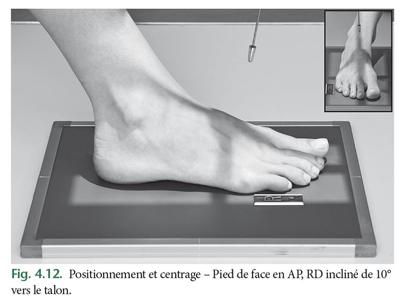 Positionnement et centrage – Pied de face en AP, RD incliné de 10° vers le talon.