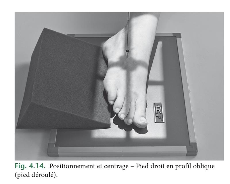 Fig. 4.14. Positionnement et centrage – Pied droit en profil oblique (pied déroulé).