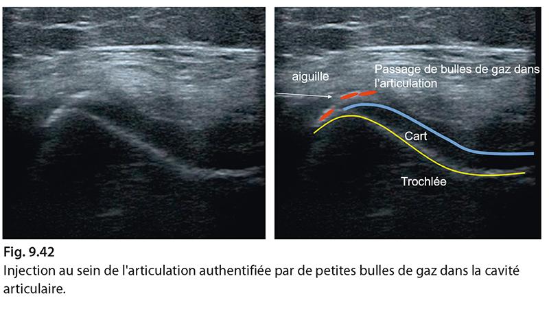 Fig. 9.42 Injection au sein de l'articulation authentifiée par de petites bulles de gaz dans la cavité articulaire.
