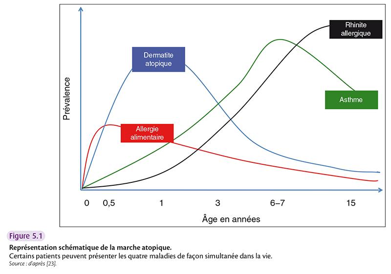 Figure 5.1 Représentation schématique de la marche atopique. Certains patients peuvent présenter les quatre maladies de façon simultanée dans la vie. Source : d'après [23].