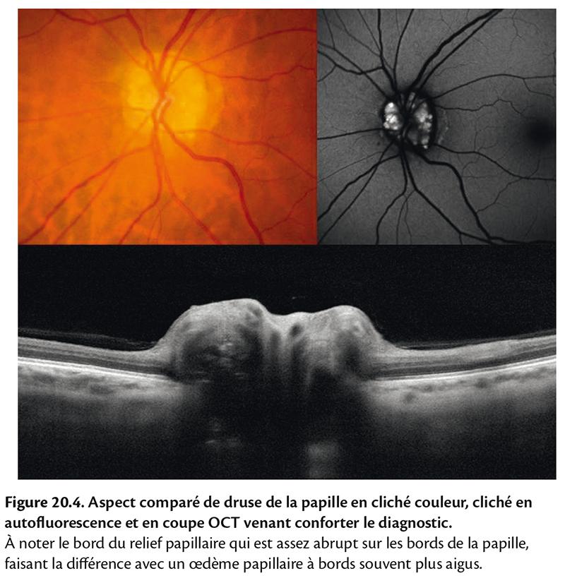 Figure 20.4 . Aspect comparé de druse de la papille en cliché couleur, cliché en autofl uorescence et en coupe OCT venant conforter le diagnostic.