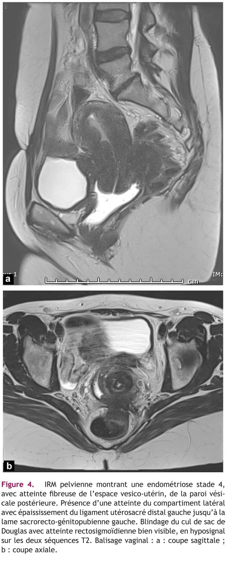 Figure 4. IRM pelvienne montrant une endométriose stade 4,avec atteinte fibreuse de l'espace vesico-utérin, de la paroi vési-cale postérieure. Présence d'une atteinte du compartiment latéralavec épaississement du ligament utérosacré distal gauche jusqu'à lalame sacrorecto-génitopubienne gauche. Blindage du cul de sac deDouglas avec atteinte rectosigmoïdienne bien visible, en hyposignalsur les deux séquences T2. Balisage vaginal : a : coupe sagittale ;b : coupe axiale.