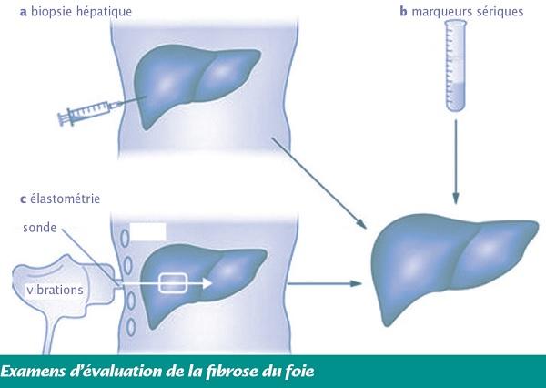 Examens d'évaluation de la fibrose du foie