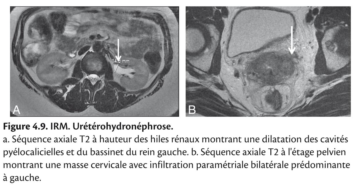 Figure 4.9. IRM. Urétérohydronéphrose.