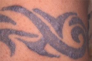 Prise en charge des réactions dites « allergiques » aux tatouages