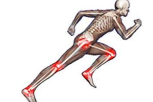 Pathologies musculaires du sportif