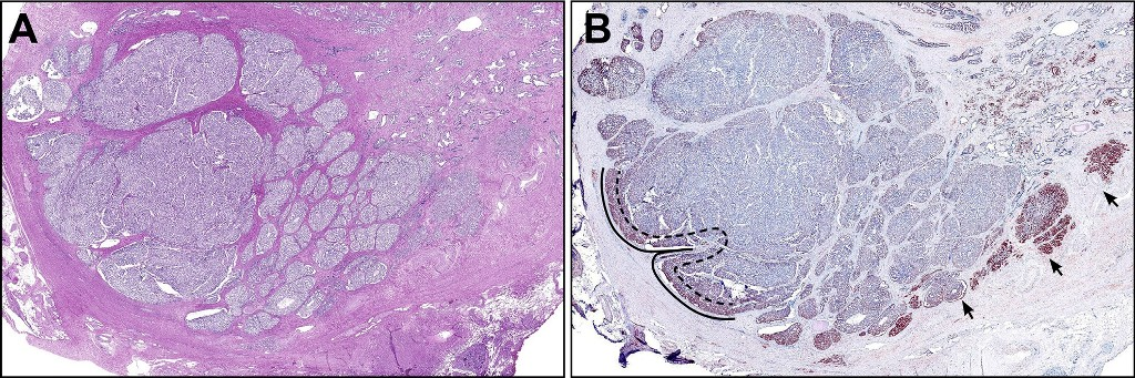 Two images side-by-side, displaying a low-magnification view of cancer nodules with the central tumor bulk.