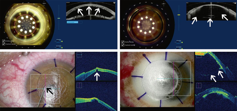 Vues peropératoires avec OCT intégré d'une kératoplastie lamellaire antérieure profonde (technique du double docking) depuis le laser femtoseconde (a, b) et le microscope opératoire (c, d).