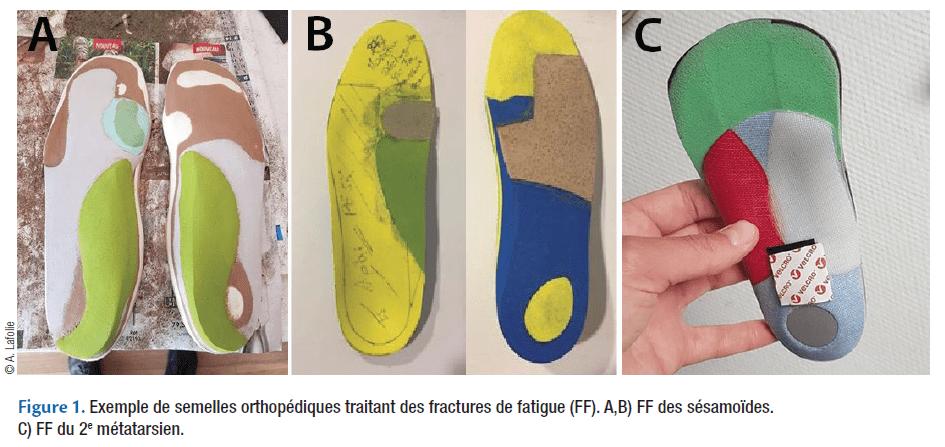 Figure 1. Exemple de semelles orthopédiques traitant des fractures de fatigue (FF). A,B) FF des sésamoïdes. C) FF du 2e métatarsien.