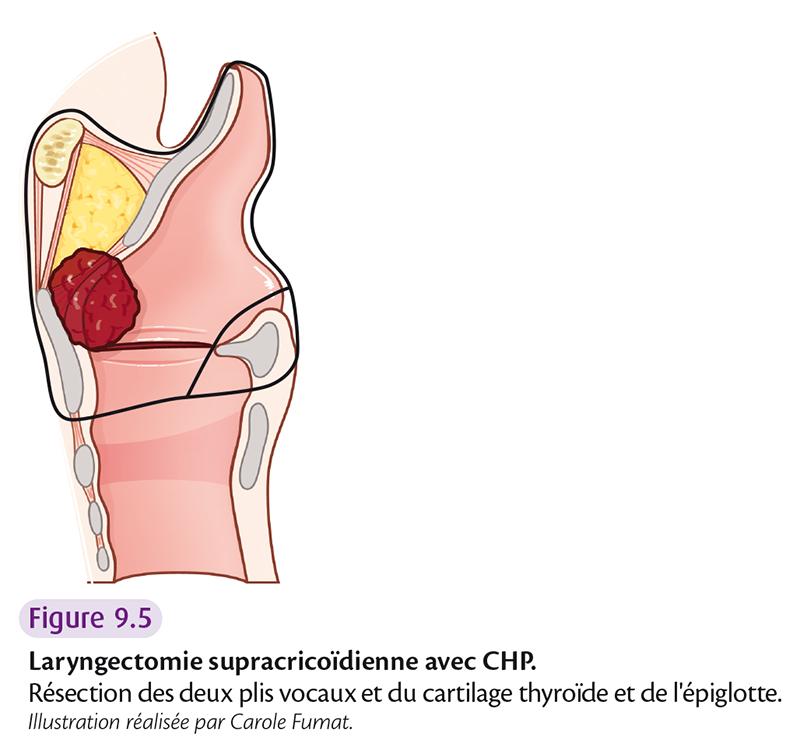 Figure 9.5 Laryngectomie supracricoïdienne avec CHP.
