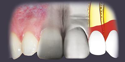 Parodontologie : Thérapeutiques correctrices