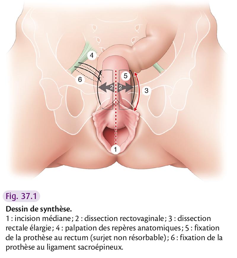 Dessin de synthèse. 1 : incision médiane ; 2 : dissection rectovaginale ; 3 : dissection rectale élargie ; 4 : palpation des repères anatomiques ; 5 : fixation de la prothèse au rectum (surjet non résorbable) ; 6 : fixation de la prothèse au ligament sacroépineux.