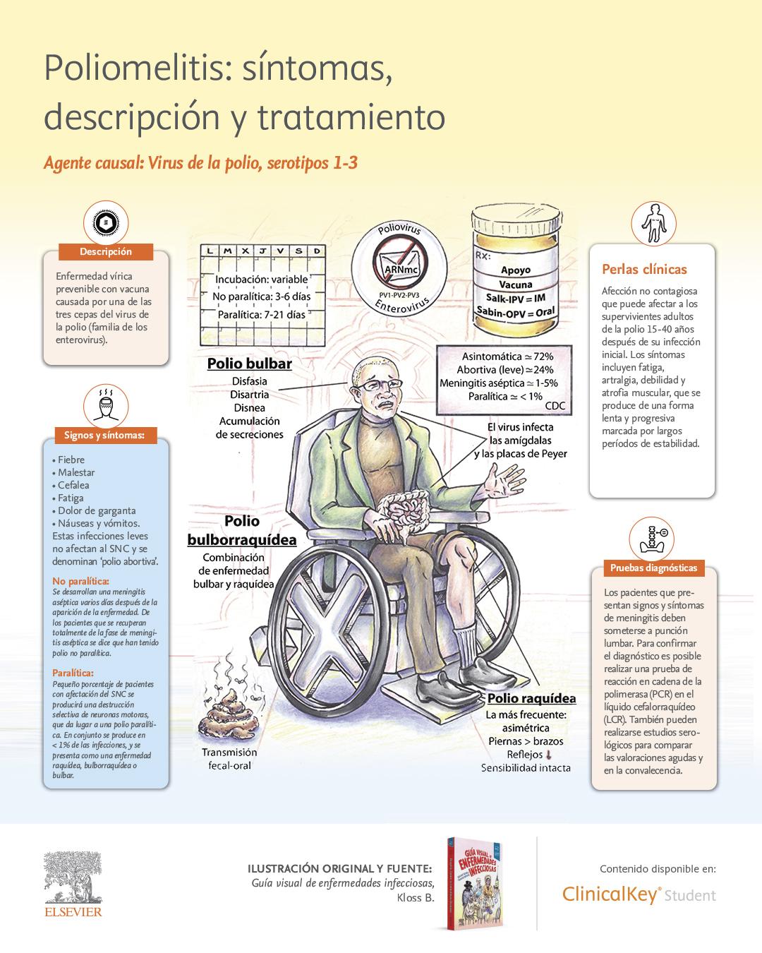 SLM_Info-Guia-visual-de-enfermedades-infecciosas_Poliomelitis.jpg