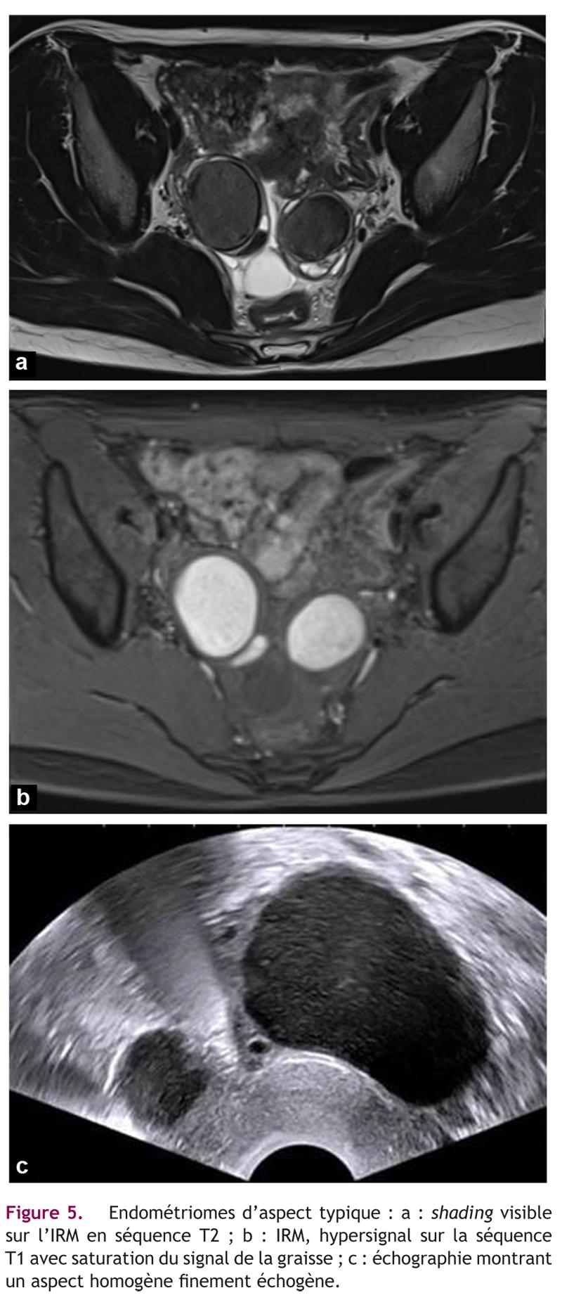 Figure 5. Endométriomes d'aspect typique : a : shading visiblesur l'IRM en séquence T2 ; b : IRM, hypersignal sur la séquenceT1 avec saturation du signal de la graisse ; c : échographie montrantun aspect homogène finement échogène.