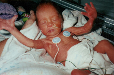 Alarms in neonatal and pediatric units can cause undue stress for parents. Elsevier&rsquo;s <a target=&quot;_blank&quot; href=&quot;http://leanin.org/stories/chrysanne-lowe&quot;>Chrysanne Lowe </a> contributed this photo of her daughter as a 28-week premie who spent 2 months in the Neonatal Intensive Care Unit of UC San Diego Health.