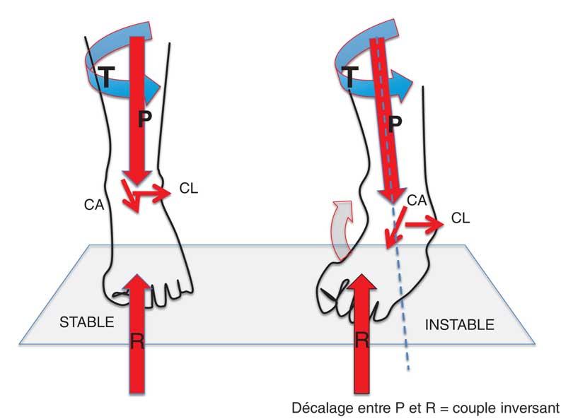 Forces à la fin de la phase portante (50 % du cycle). T : torque de rotation externe ; P : poids du corps ; CL : cisaillement latéral ; CA : cisaillement antérieur ; R : réaction du sol à l'appui