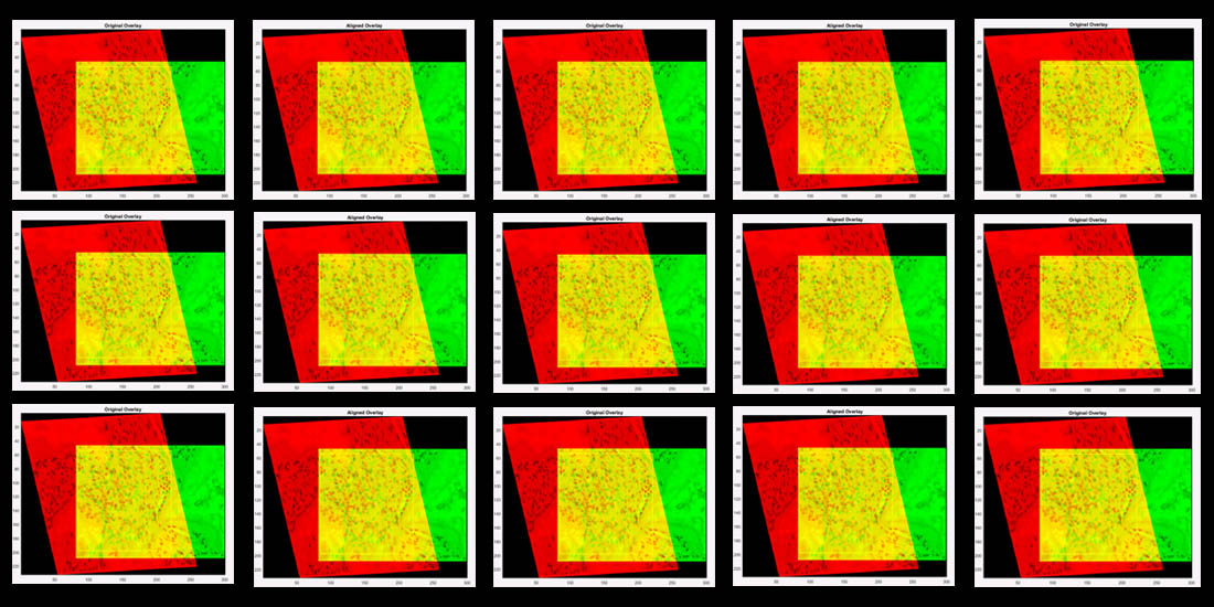 Design based on an overlay of sample images (one in red, one in green, overlap in yellow) used in a study Dr. Mary Walsh, Chief Scientific Investigator, Harvard Medical School.