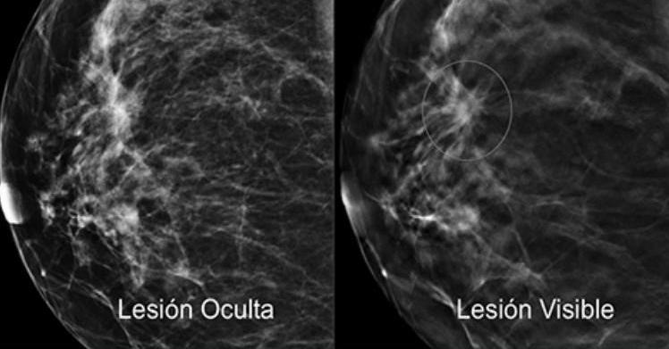 cancer-mama-foto-lesion-maria-cholvi.jpg