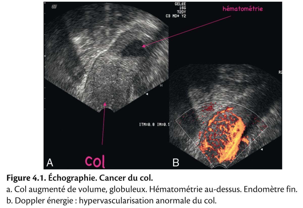 Figure 4.1. Échographie. Cancer du col.