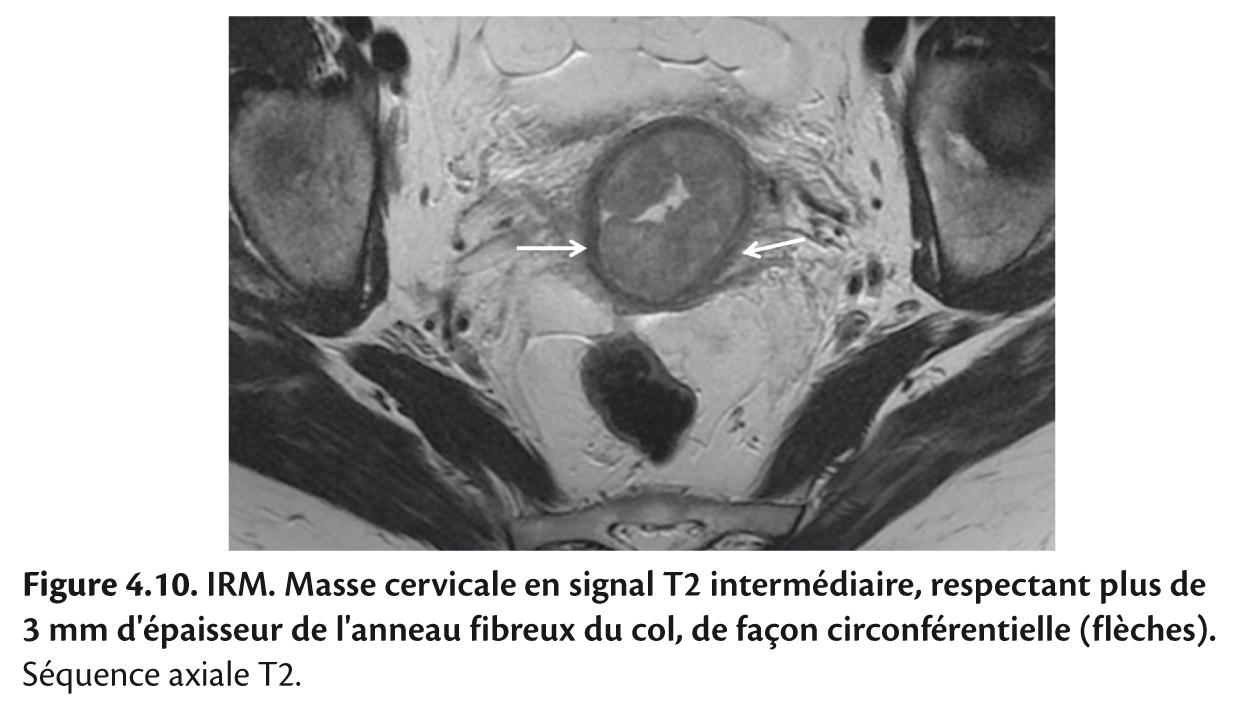 Figure 4.10. IRM. Masse cervicale en signal T2 intermédiaire, respectant plus de 3 mm d'épaisseur de l'anneau fibreux du col, de façon circonférentielle (flèches).