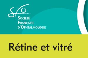 Rétine et vitré : Thérapies laser pour les maladies du segment postérieur