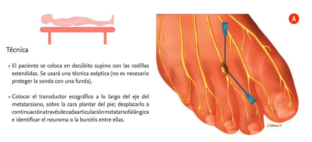 Neuroma de Morton: técnica, tratamiento y rehabilitación posterior