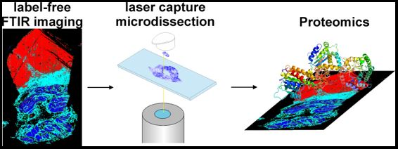 Three images illustrating the Label-free Fourier transform infrared, the laser capture microdissection and then the proteomics.
